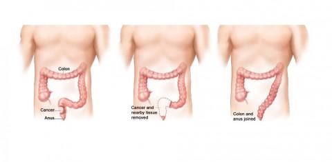 Descubierta una nueva causa de resistencia a quimioterapia en cáncer de colon
