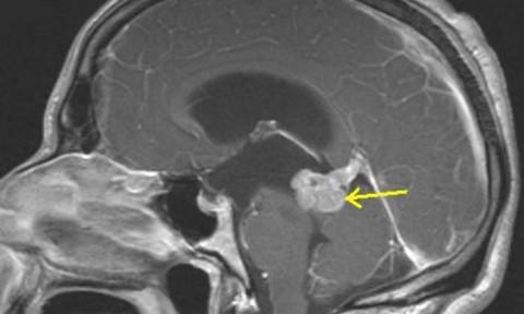 """Da comienzo el proyecto """"Atlas de tumores cerebrales pediátricos"""", ¿Sabes en qué consiste?"""