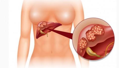Un nuevo fármaco que mejora la supervivencia en carcinoma hepatocelular