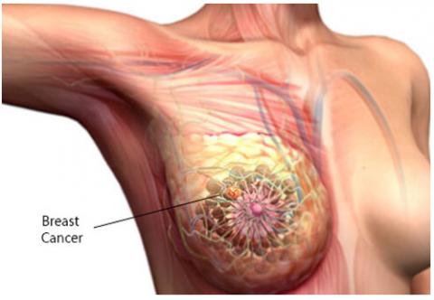 Prescindir de la quimioterapia en cáncer de mama es posible gracias a los biomarcadores