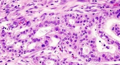 Una nueva combinación terapéutica duplica la supervivencia en el cáncer de páncreas