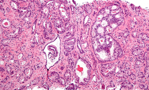 ¿Por qué determinados tipos de cáncer de próstata son más agresivos?