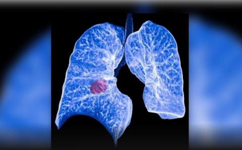 Nueva terapia dirigida reduce a la mitad el riesgo de progresión en cáncer de pulmón