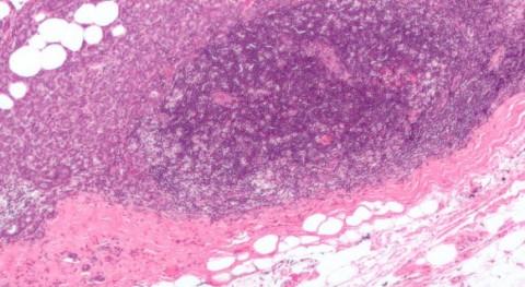 Nuevos marcadores moleculares para predecir respuesta a tratamiento en cáncer de mama