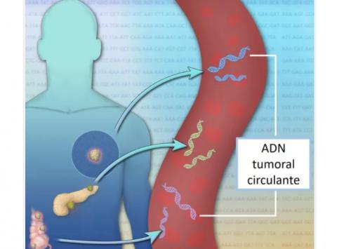 El 90% de las alteraciones genéticas de un tumor puede detectarse en sangre