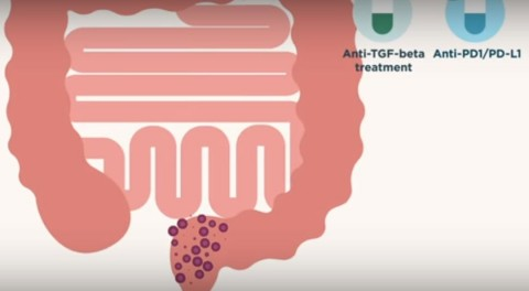 Científicos españoles descubren cómo mejorar el tratamiento inmunoterápico en cáncer de colon