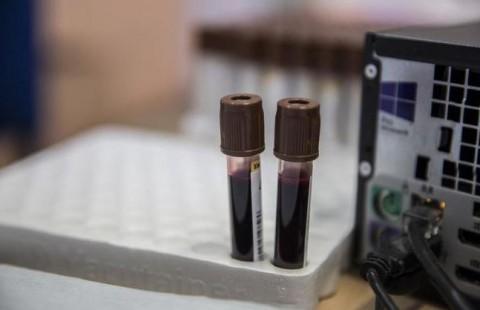 La detección precoz del cáncer en sangre cada vez está más cerca