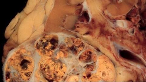 Identificadas nuevas alteraciones moleculares en cáncer renal sobre su formación y evolución