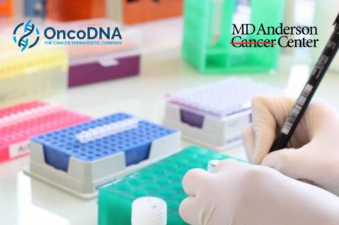 OncoDNA firma un acuerdo de colaboración con MD Anderson