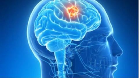 La clasificación molecular de los tumores cerebrales permitirá mejores tratamientos