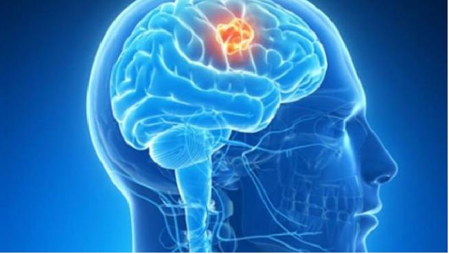 08.06.2018 día tumores cerebrales