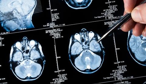 Un fármaco extraído del cardo consigue frenar las metástasis cerebrales