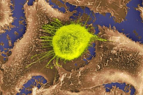 El ADN determina el éxito del tratamiento con inmunoterapia
