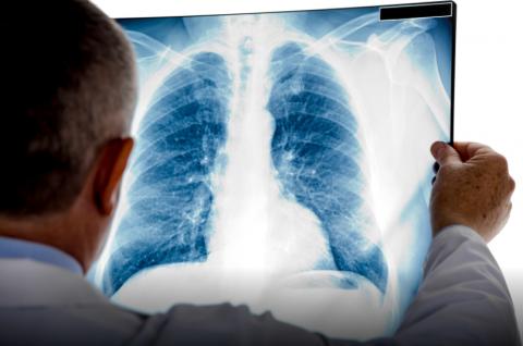 Un fármaco dirigido muestra en pacientes de cáncer de pulmón una respuesta de más de dos años