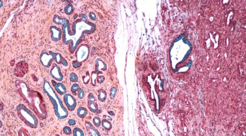 Nueva diana terapéutica para el tipo más común de cáncer de páncreas