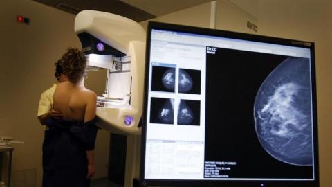 Diagnóstico, Abordaje y Tratamiento del Cáncer de Mama