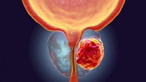 Sintomatología, Causas y tratamiento para el Cáncer de próstata