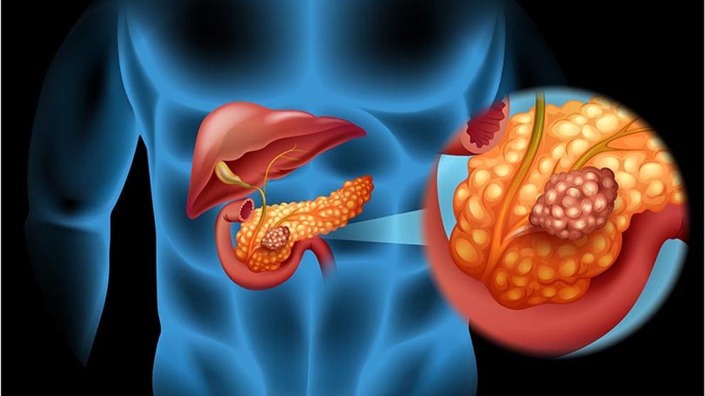 El proceso metastásico en el cáncer de páncreas.
