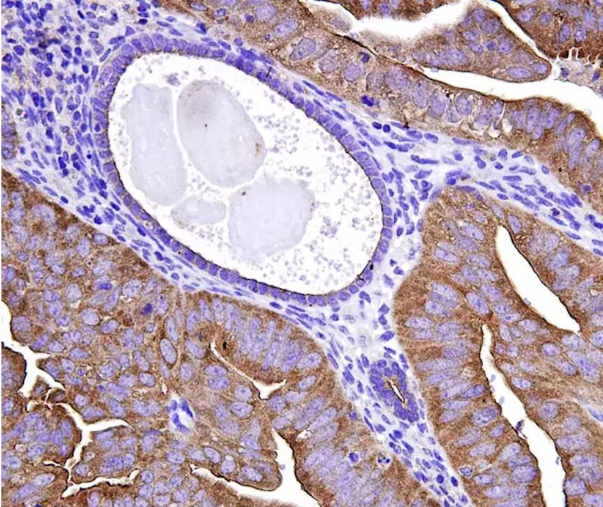 Nuevos marcadores moleculares para el diagnóstico de cáncer de endometrio.