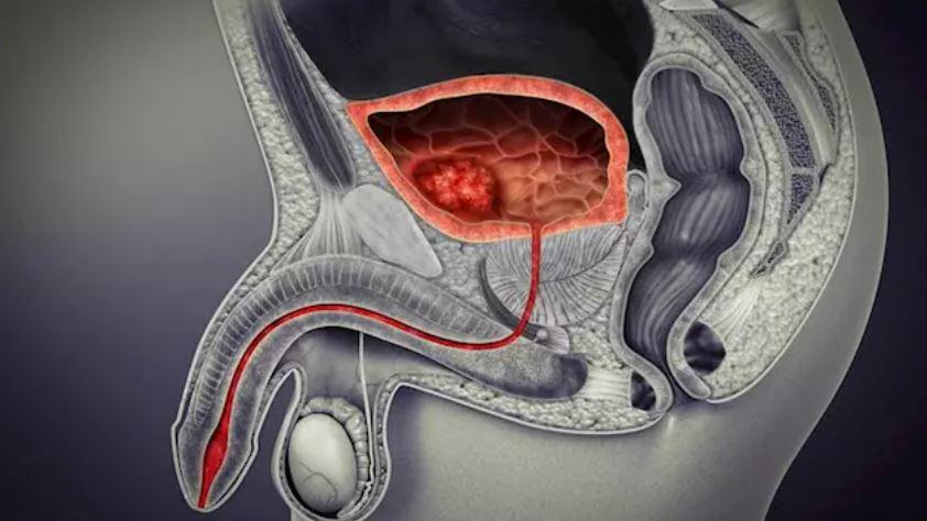 Nuevas opciones terapeúticas para el cáncer de vejiga metastásico.