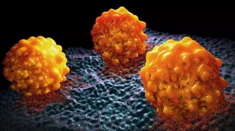 Descubren una proteína esencial en la respuesta a fármacos en el cáncer de páncreas.