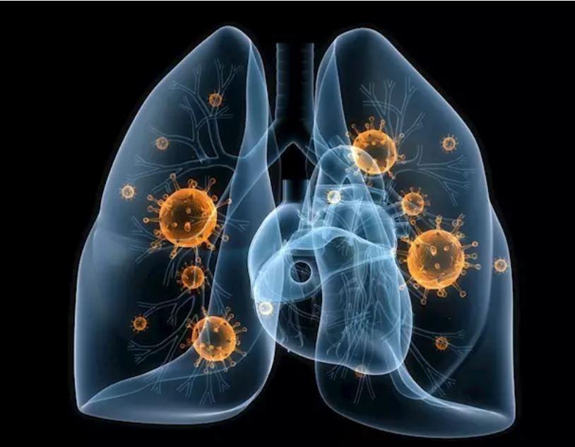Se aprueba el fármaco lurbinectedina para el cáncer de pulmón microcítico metastásico.