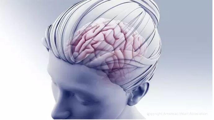 Nueva terapia dirigida a las metástasis cerebrales del cáncer de mama.