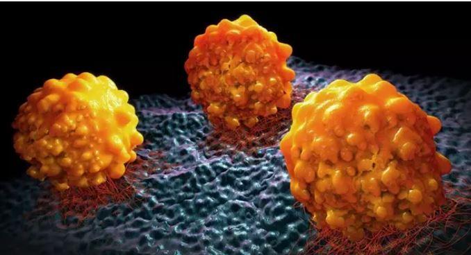 La sortilina, un nuevo objetivo para el tratamiento del cáncer de páncreas.