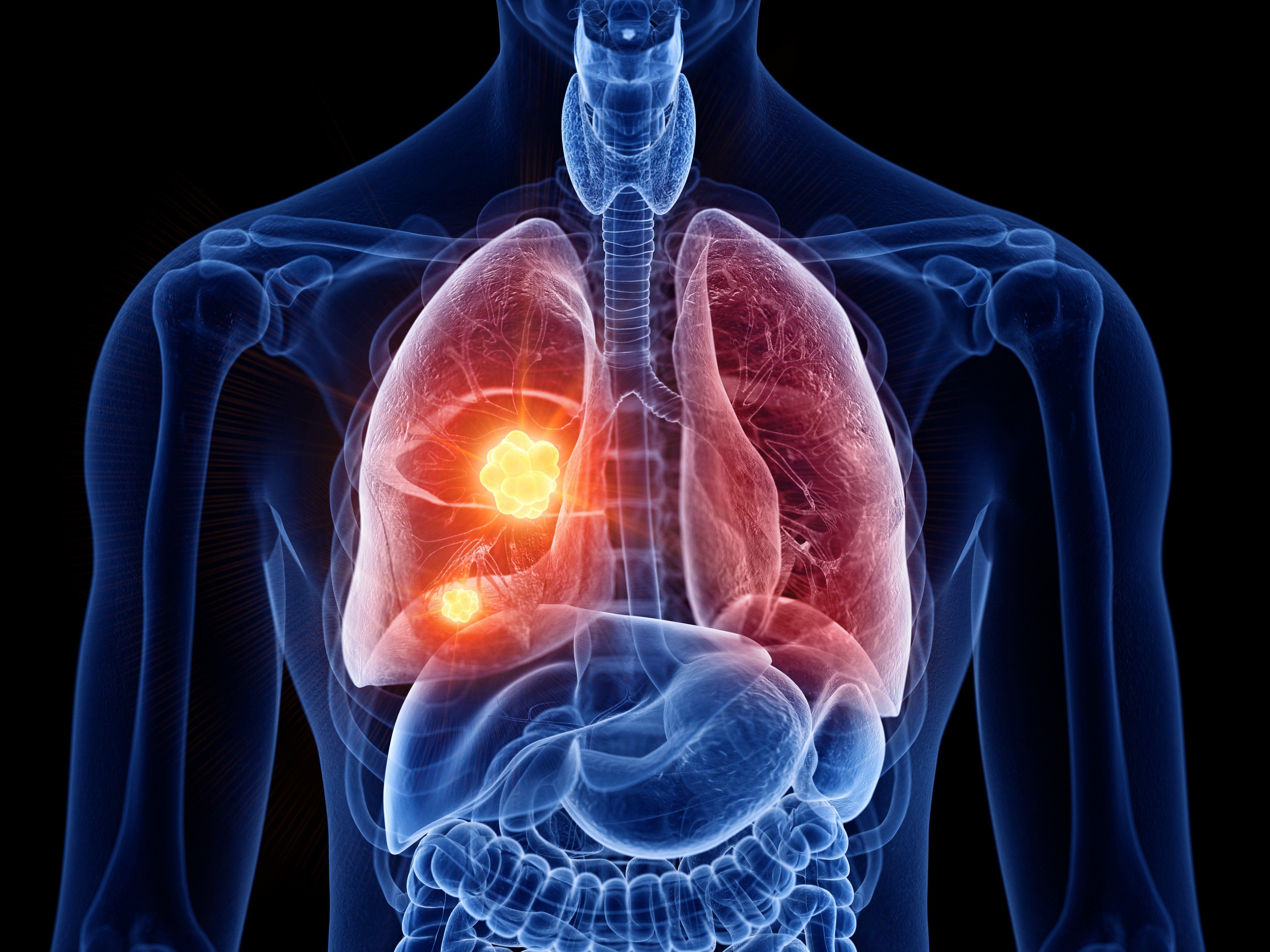 Biomarcadores: herramienta clave en la Oncología de Precisión