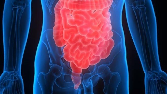 Investigadores españoles encuentran nuevos biomarcadores para diagnosticar el cáncer de colon metastásico